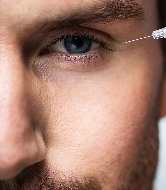 Botoks (Kırışıklık Tedavisi) Nasıl Yapılır?