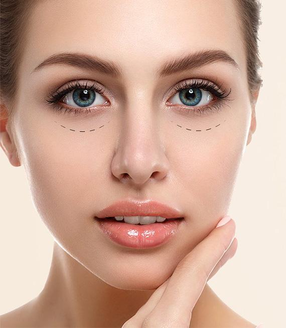 Göz Altı Torbası Ameliyatı Nedir?